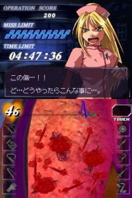 【超執刀カドゥケウス】 手術シーン