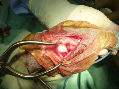 十字靭帯断裂 手術中
